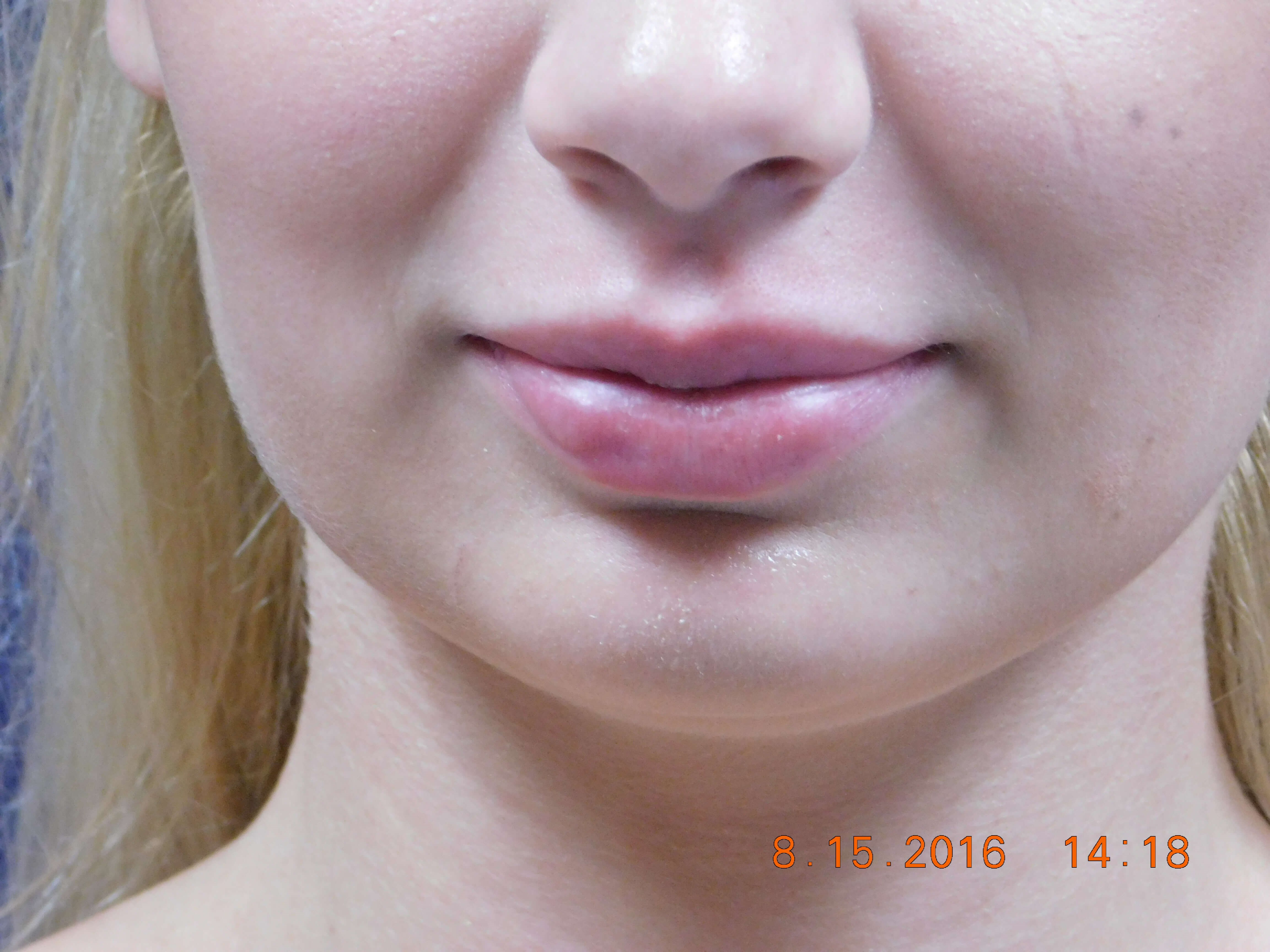 Lip Augmentation with Filler After