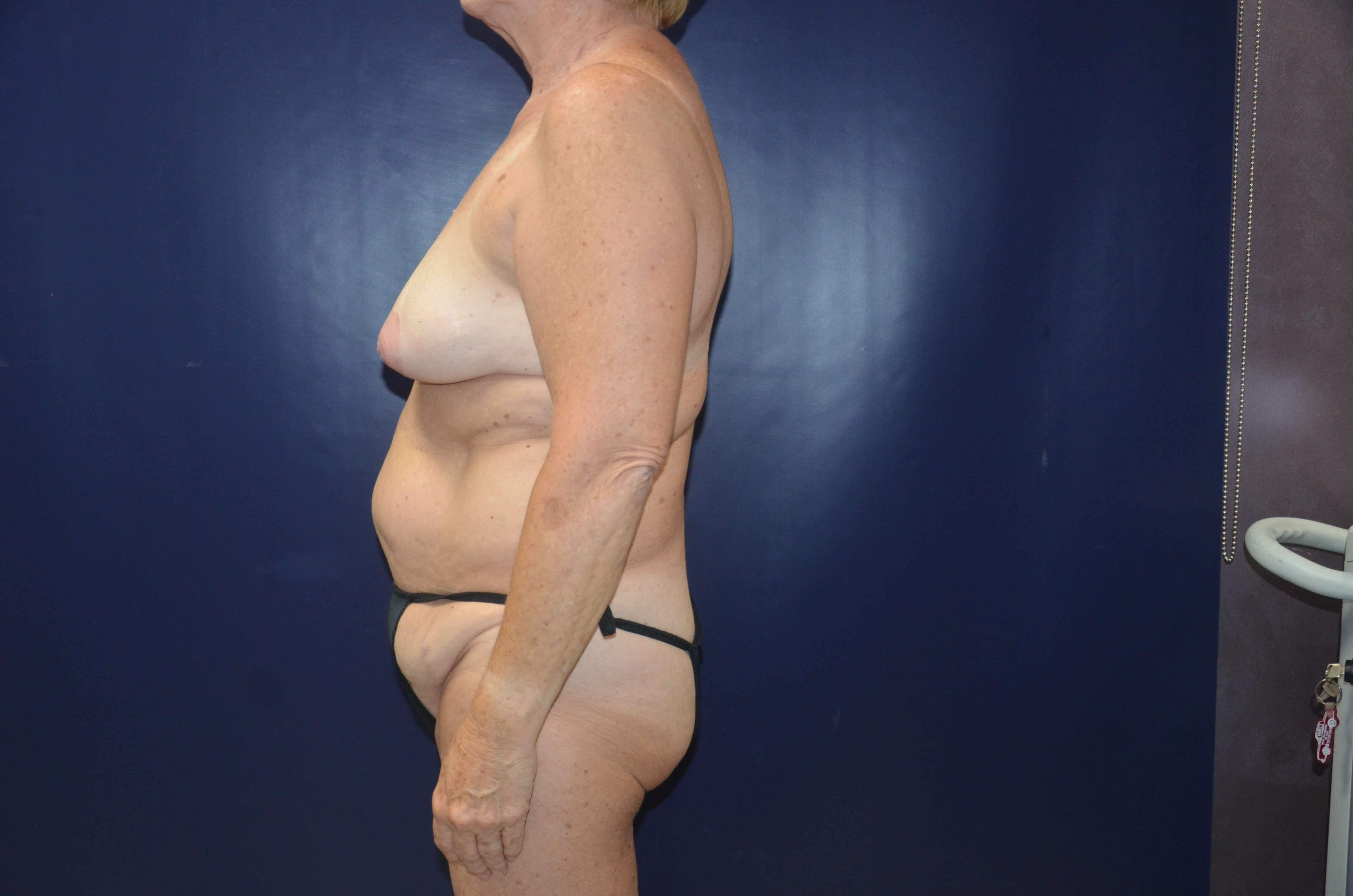 Female Desiring Body Contour Before