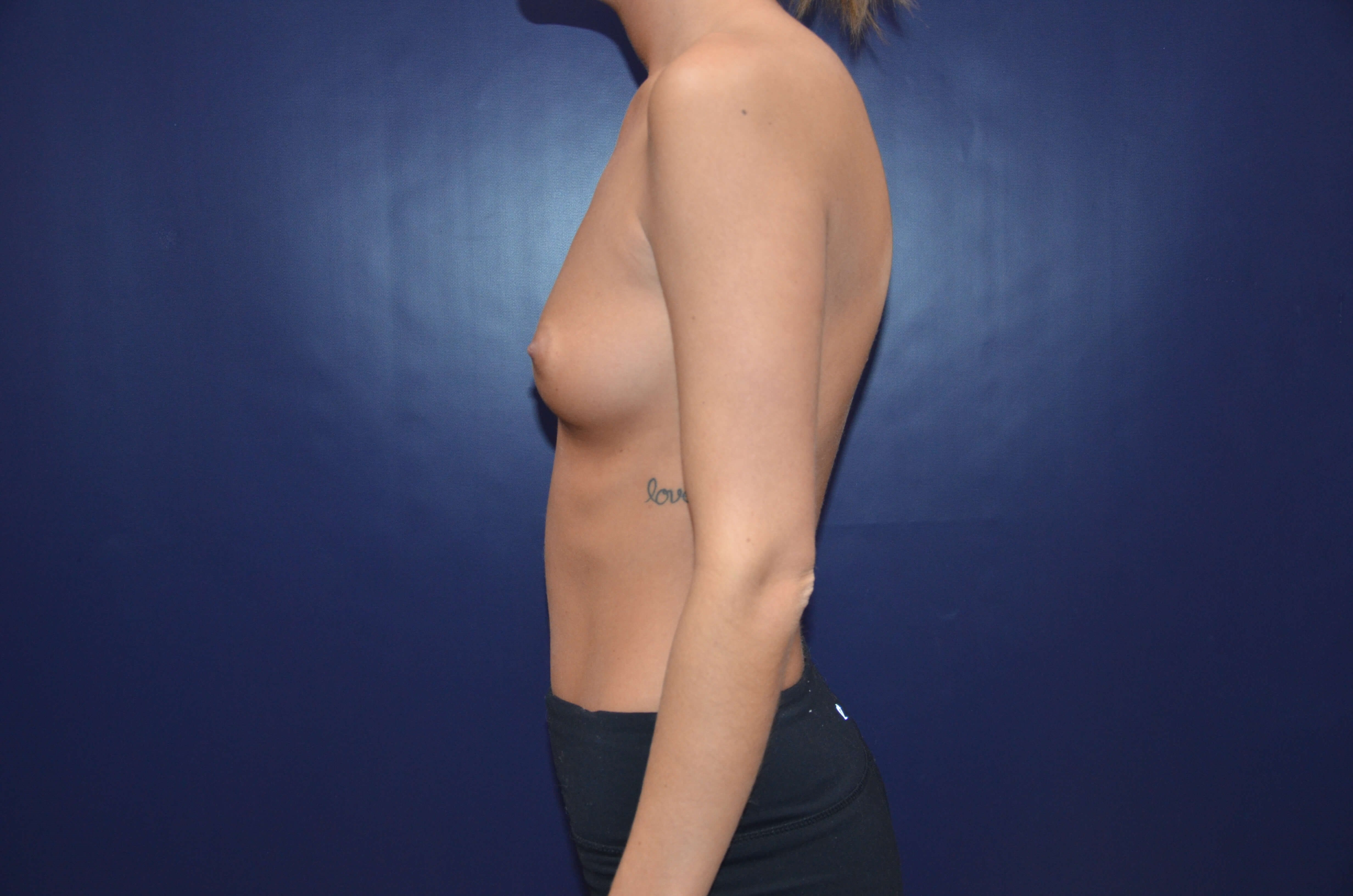 Beautiful Breast Augmentation Before