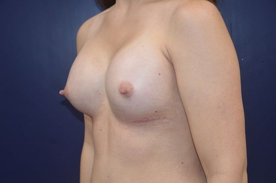 Beautiful Breast Augmentation After