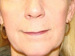 Woman Seeking Lifted Upper Lip Before