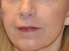 Woman Seeking Lifted Upper Lip After