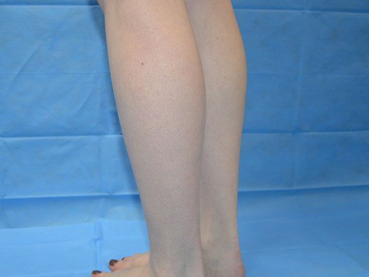 Calf Augmentation Before