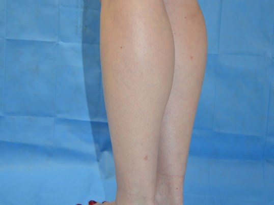 Calf Augmentation After