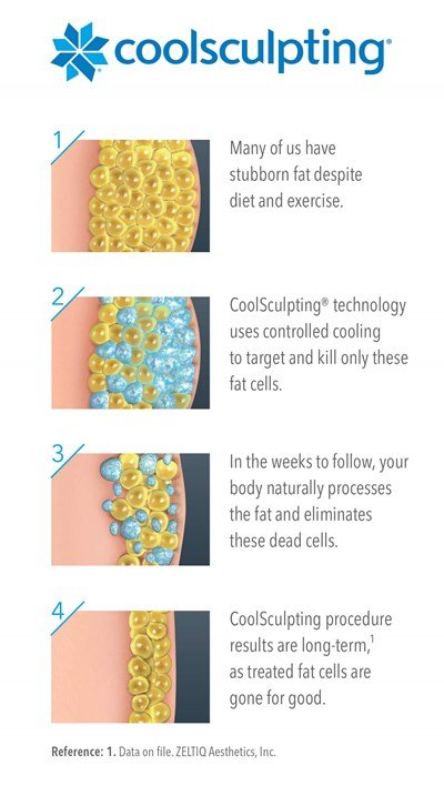 CoolSculpting Illustration