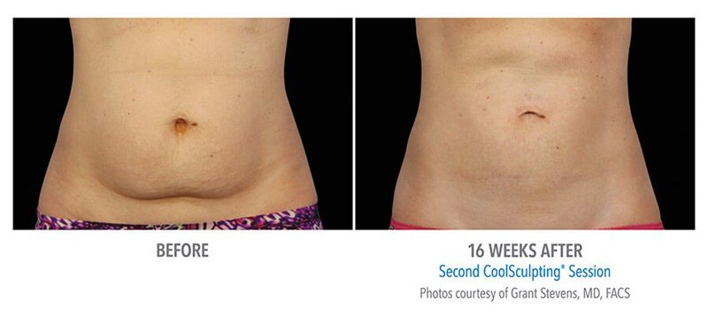 CoolSculpting Example Before & After Image of Female Abs from Front View