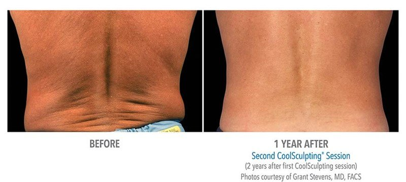 CoolSculpting Example 1 Before & After Image of Male Flanks (Love Handles) from Back View