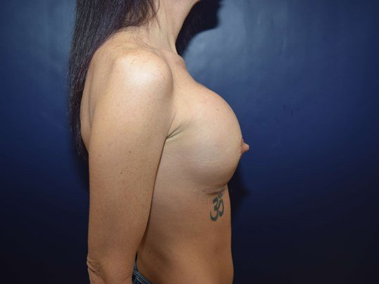 Female desiring larger breasts After