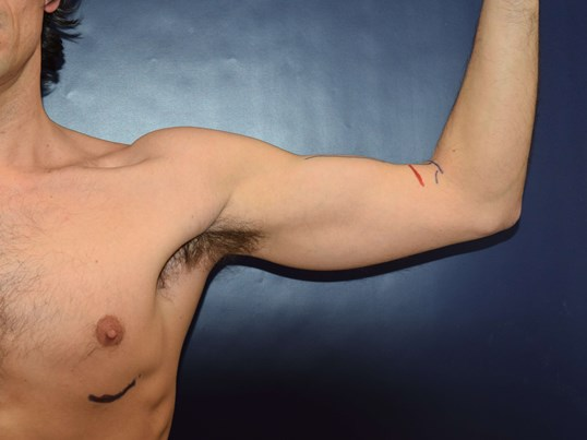 37 yo seeks Bicep Augmentation Before