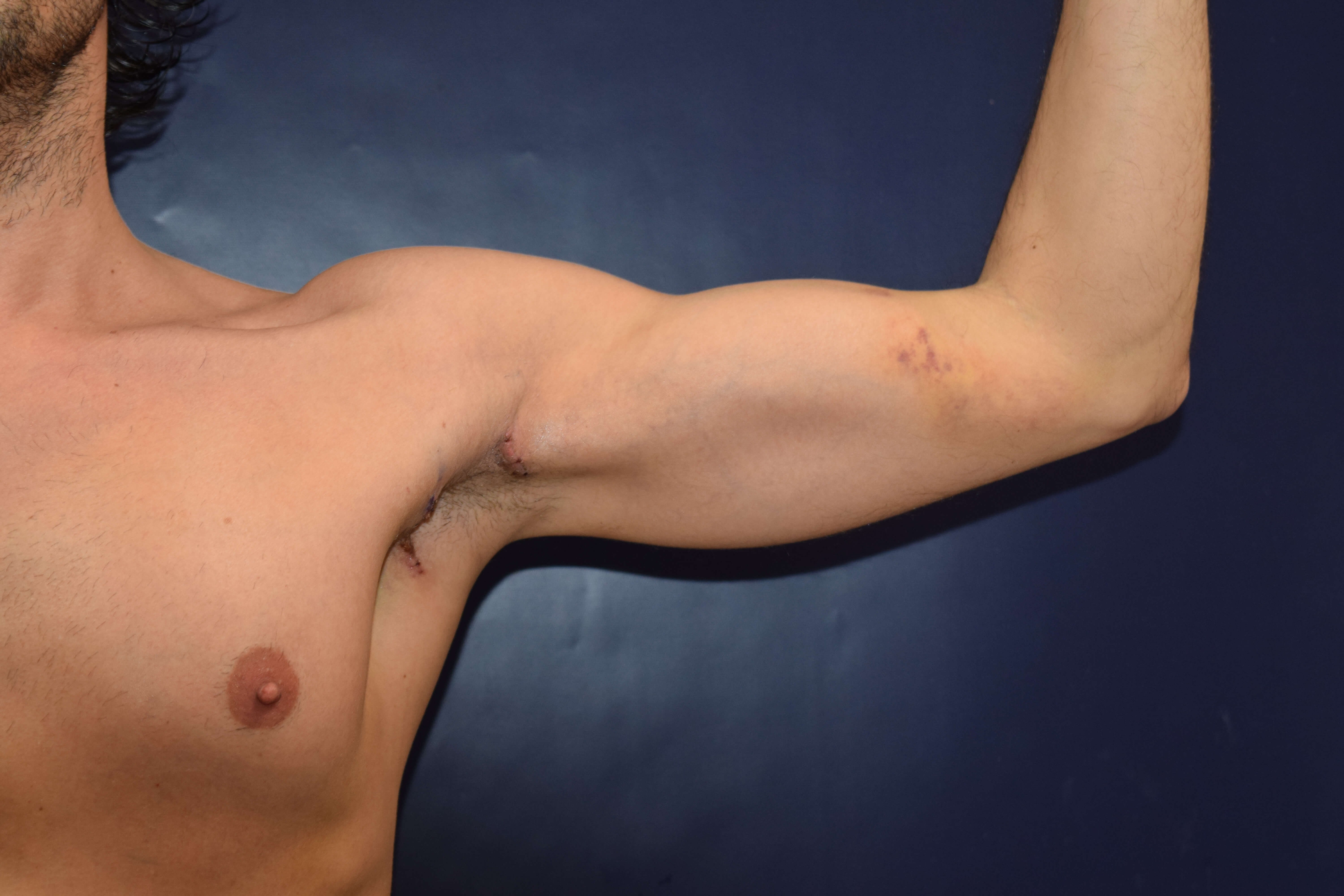 37 yo seeks Bicep Augmentation After