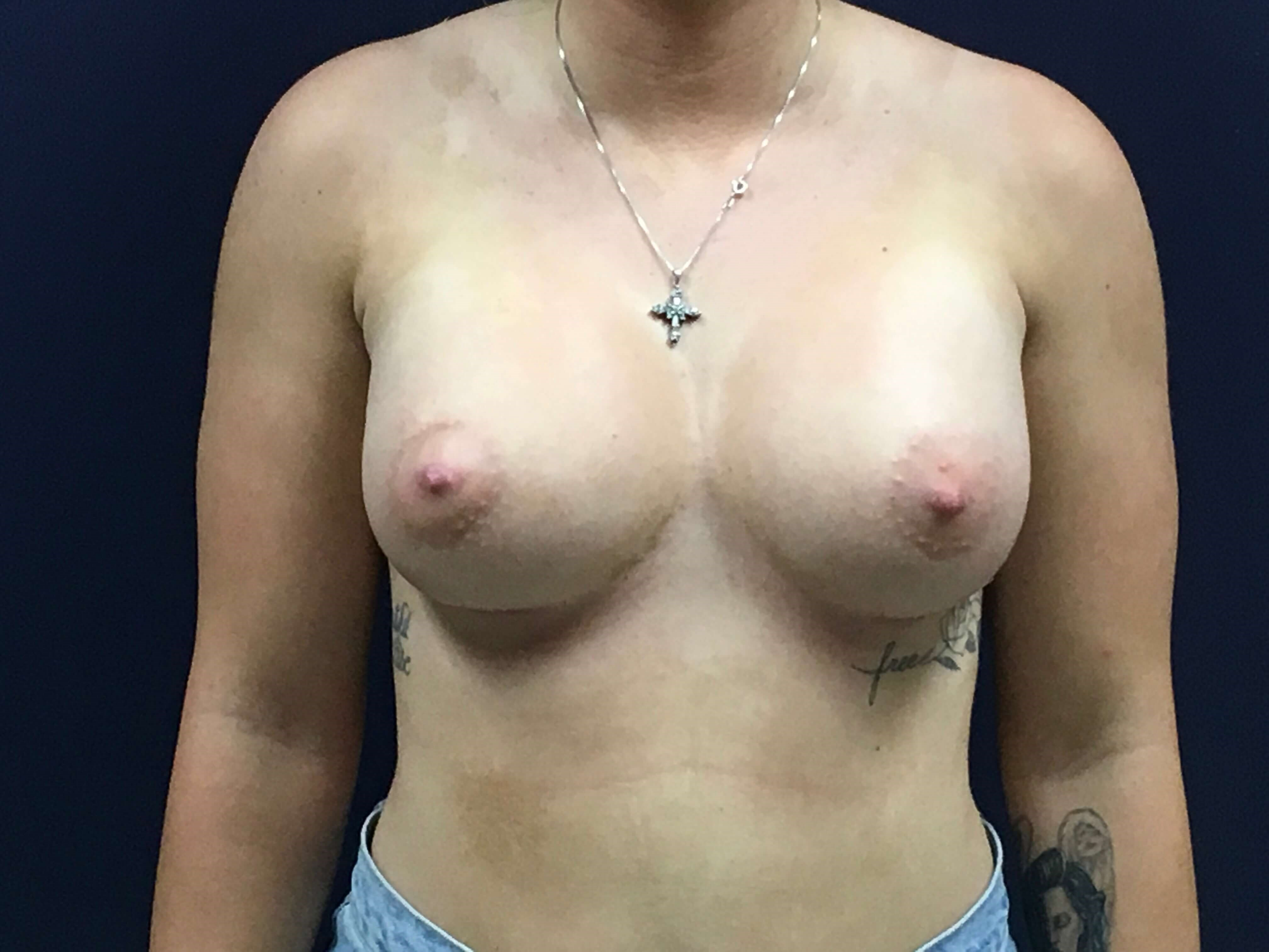 21 year old Breast Implants Front View After