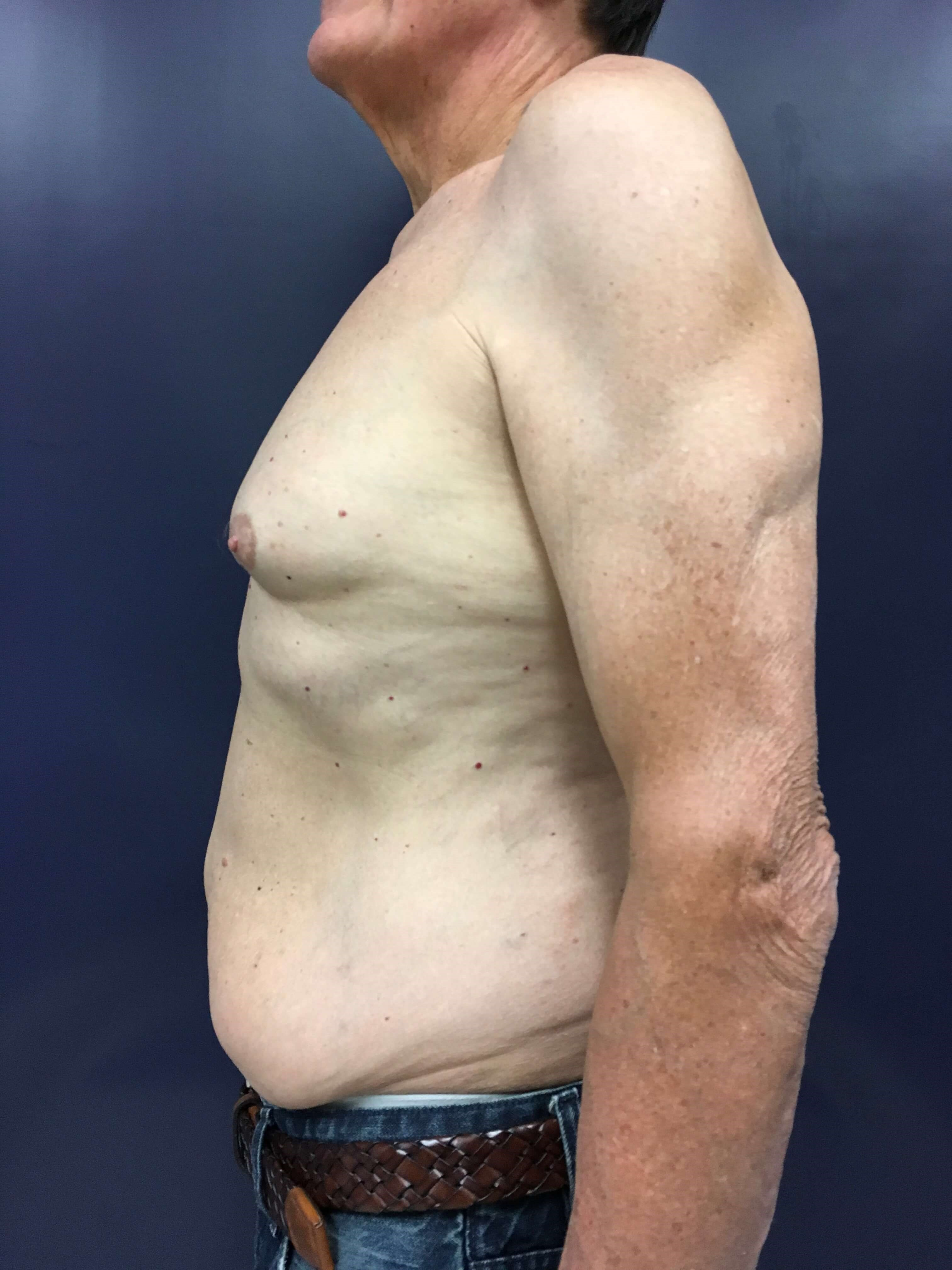8 Weeks Post-Op Before Side View