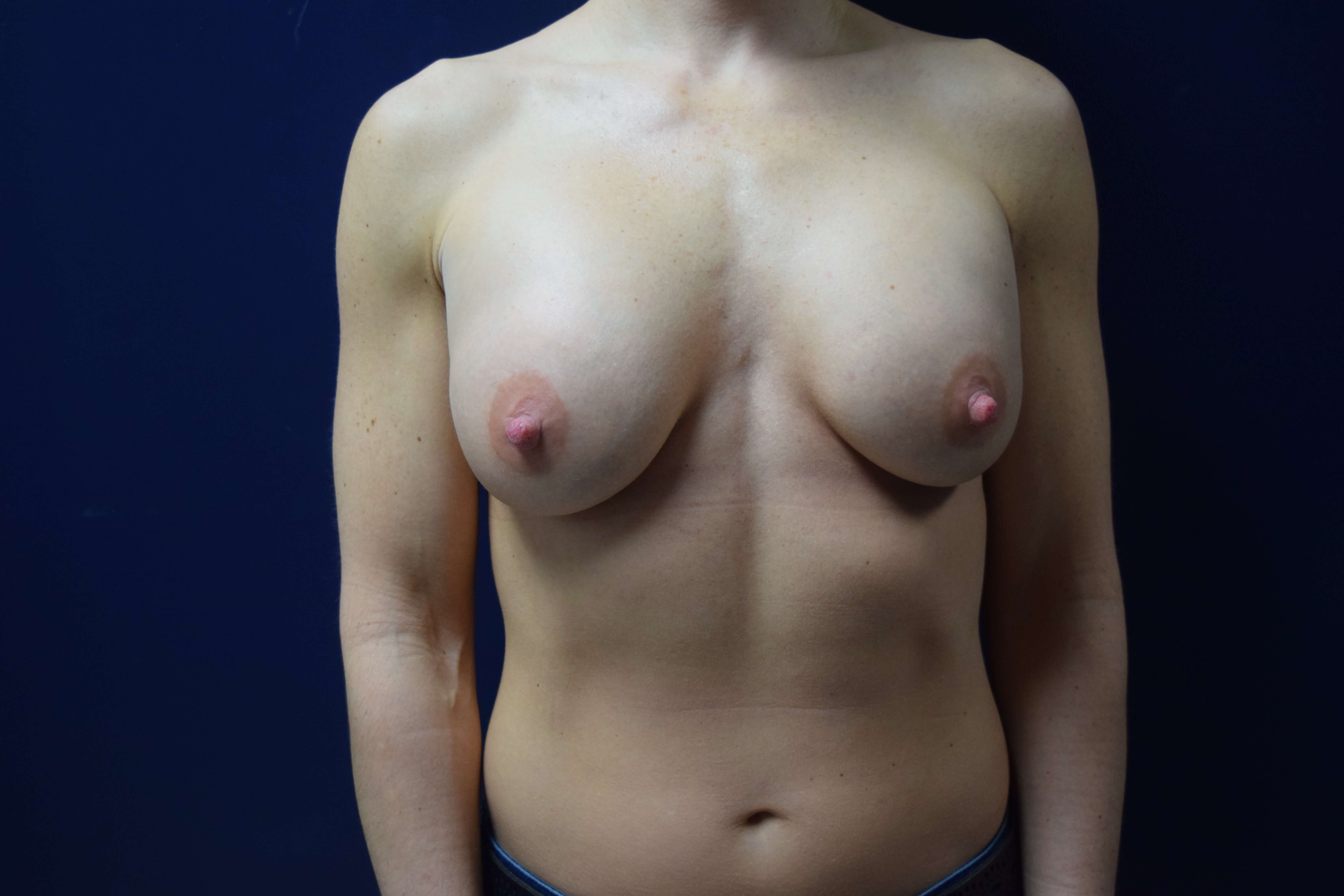 Breast Augmentation 3 months post op