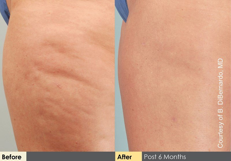 Cellulaze Example Before & After Image of Female Legs from Side View 001