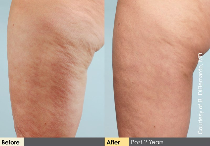 Cellulaze Example Before & After Image of Female Legs from Side View 002