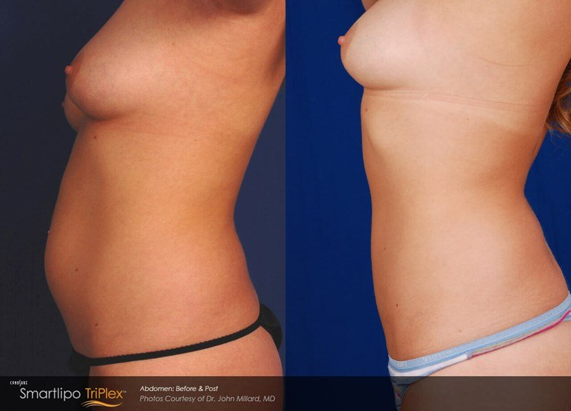 SmartLipo Triplex Example Before & After Image of Female Abdomen from Left Side View 001