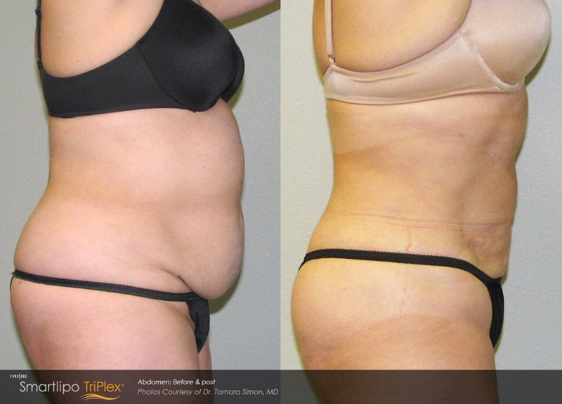 SmartLipo Triplex Example Before & After Image of Female Abdomen from Right Side View 003