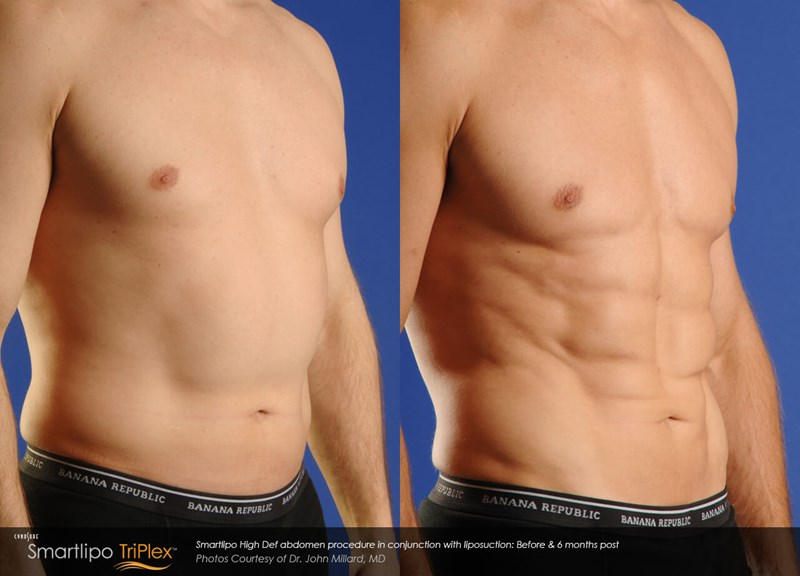 SmartLipo Triplex Example Before & After Image of Male Abdomen from Oblique View 005