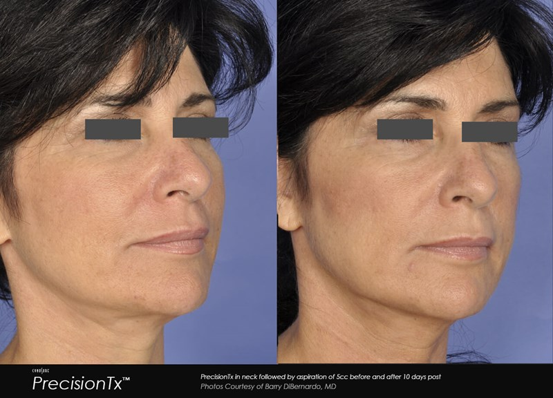PrecisionTX Example Before & After Image of Female Neck from Oblique View 005