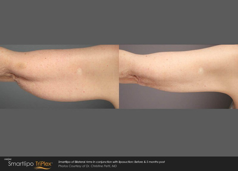 SmartLipo Triplex used for female arm lift (brachioplasty) Before & After Image
