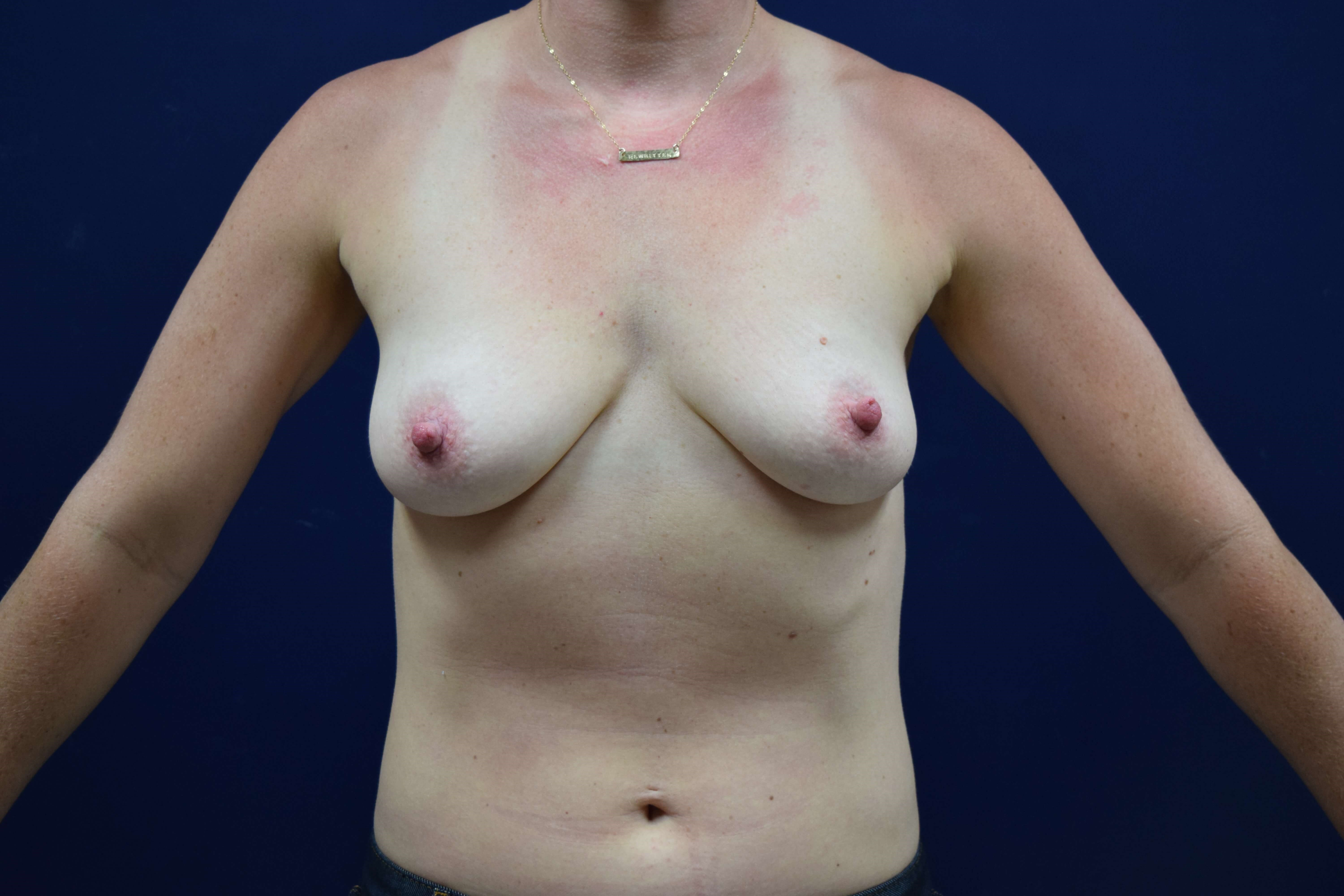 Breast Augmentation Photos Before Front View