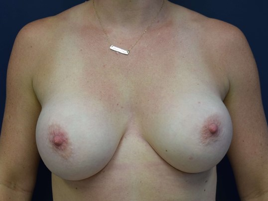 Breast Augmentation Photos After Front View