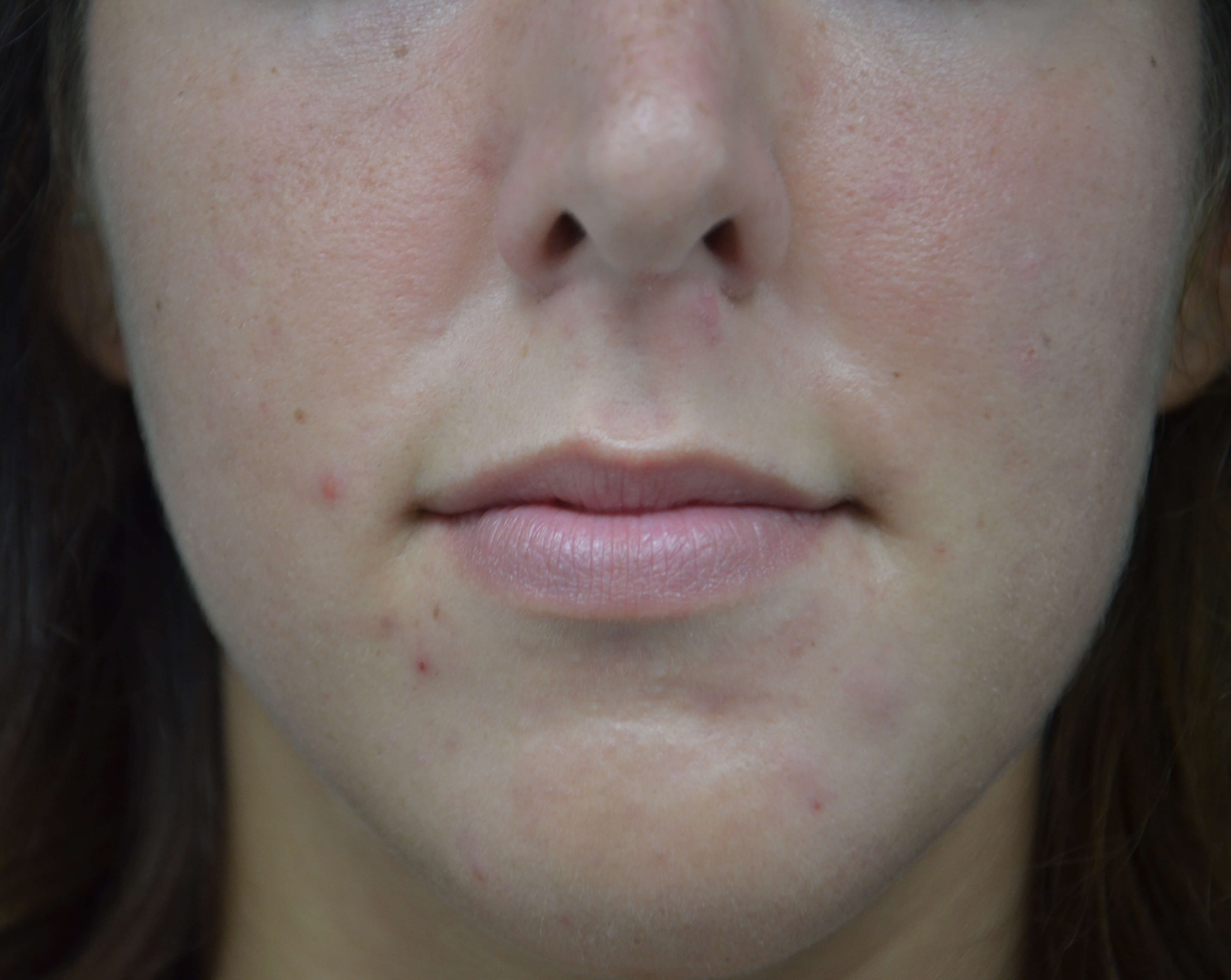 Lip Augmentation Side Before
