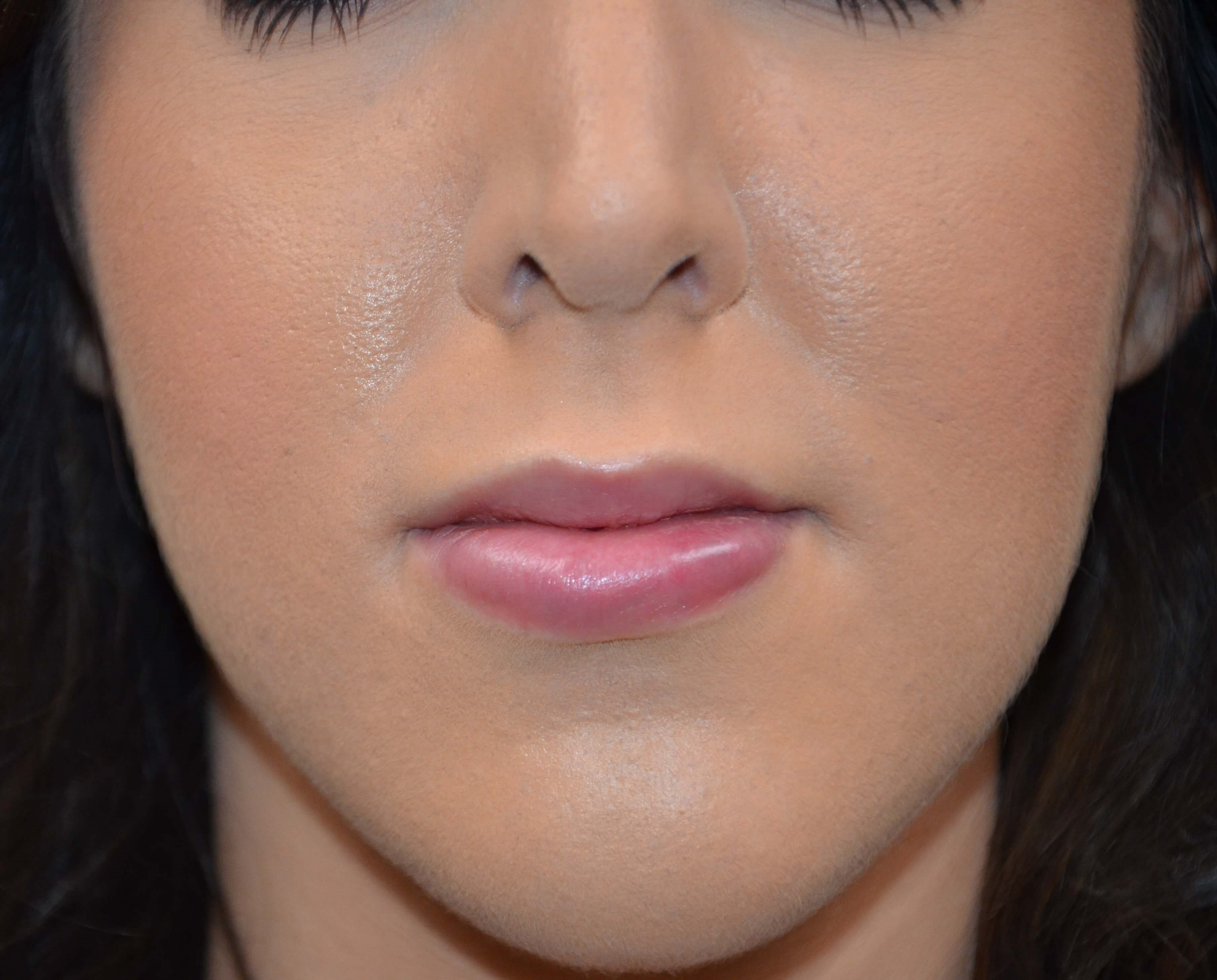 Lip Augmentation Side After