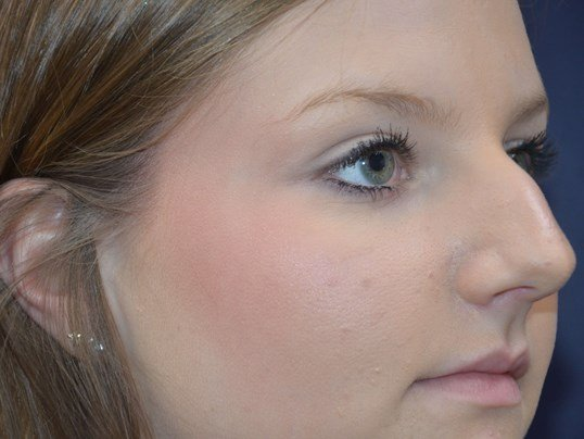 Rhinoplasty Right Before