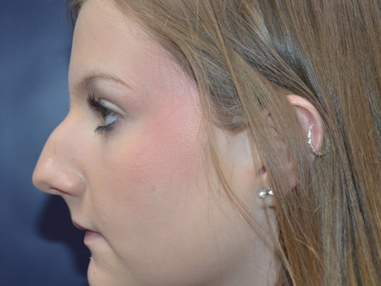 Rhinoplasty Side Before