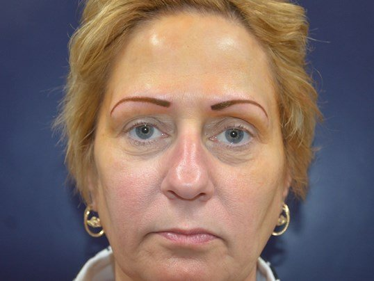 Before & After Eyebrow Tattoo After