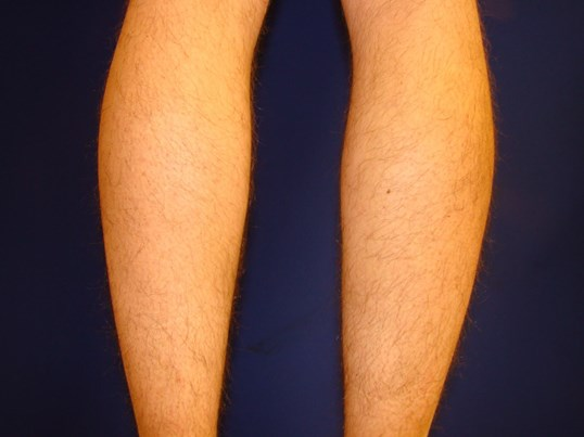 Calf Implant Pre-Op Calf Augmentation
