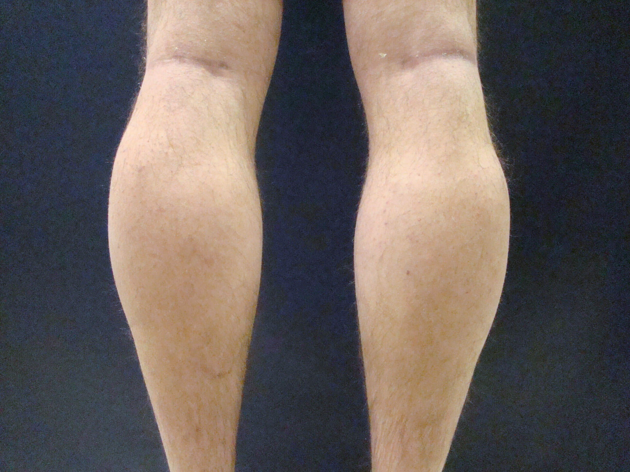 Calf Implant Post-Op Calf Augmentation