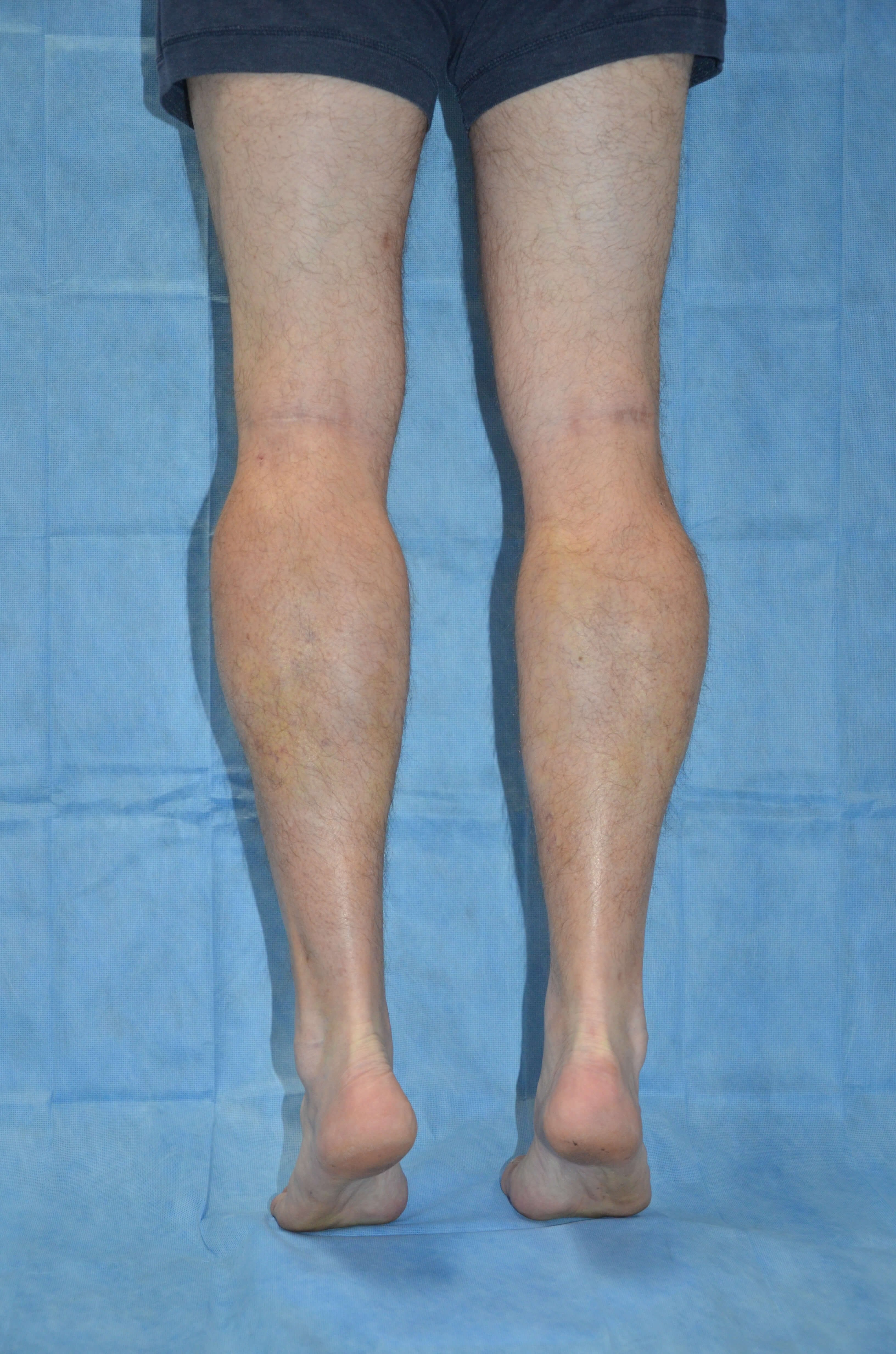 Calf Enhancement, Male Post Fat Grafting, Calf Back