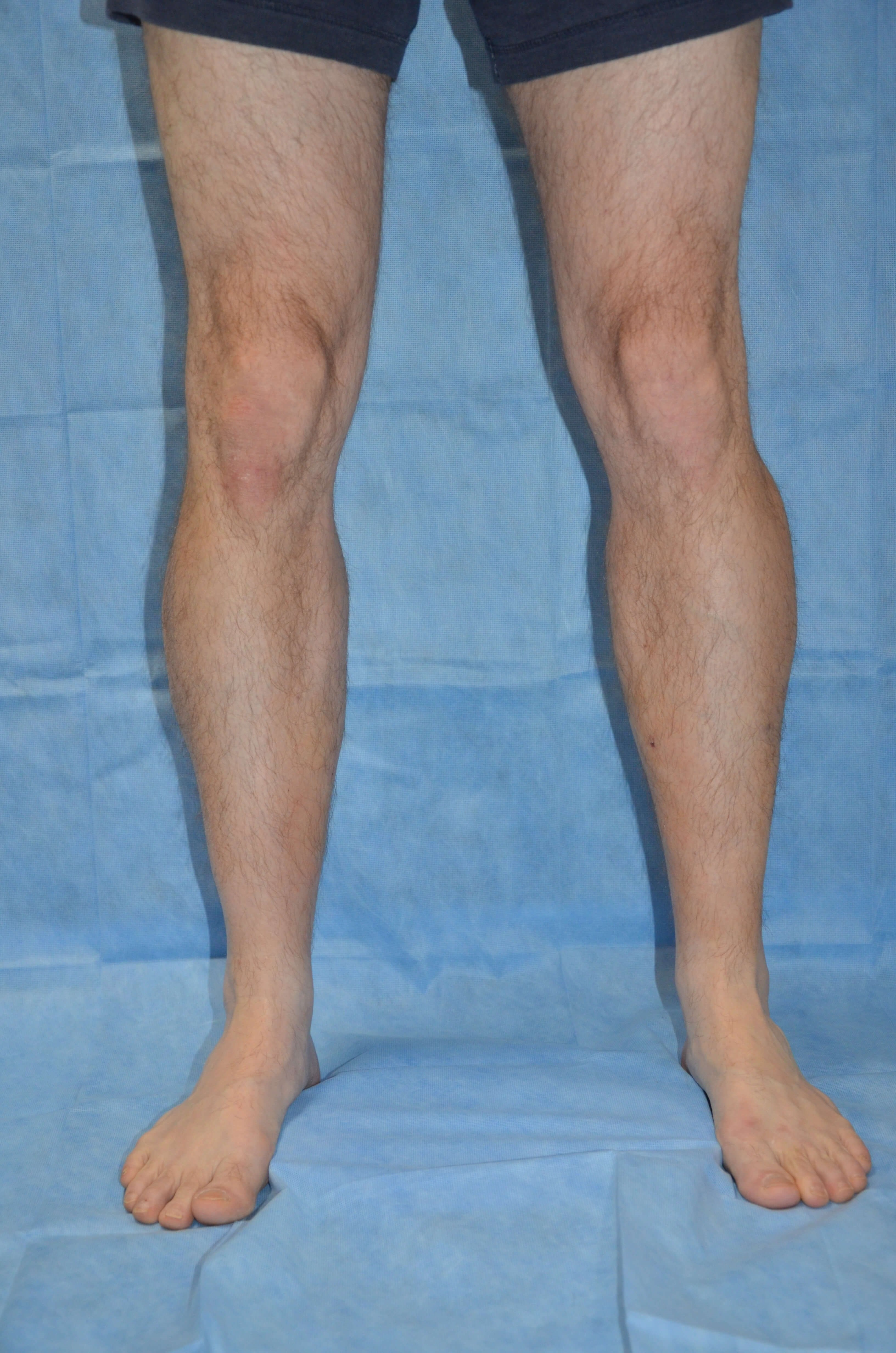Calf Enhancement, Male Post Fat Grafting, Calf Front