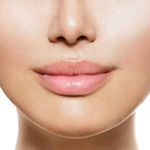 Lip Augmentation Image