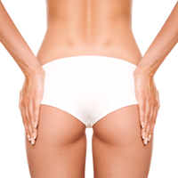 Butt Augmentation with Implant