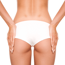Butt Augmentation with Implant*